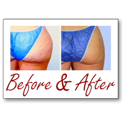 butt reduction