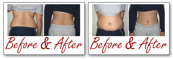 abs and back liposuction