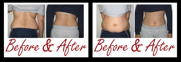 Liposuction Liposuction Alternative Lipo Fat Reduction