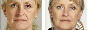 facelift results fast