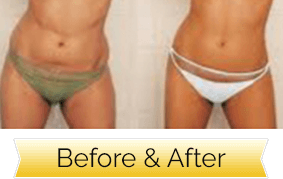 abs liposuction fast